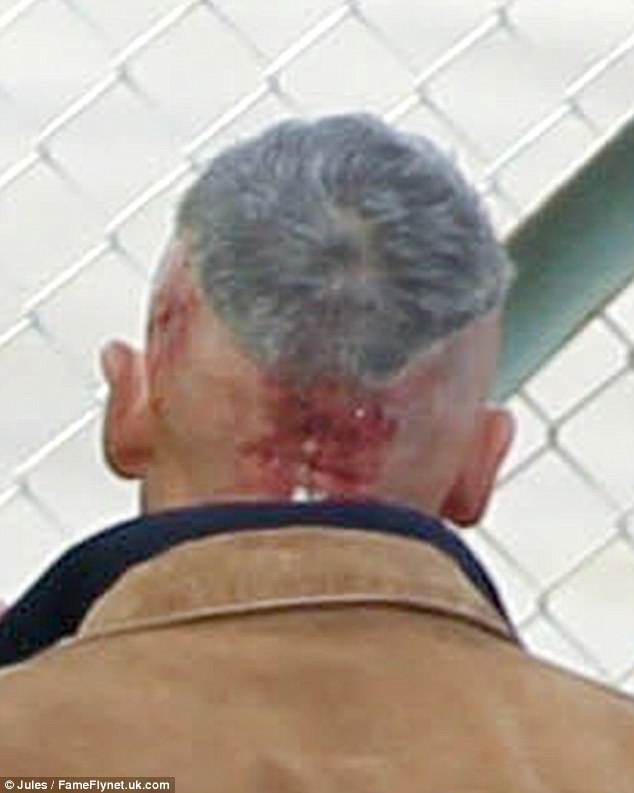 Kevin Costner Sports Nasty Looking Head Injury And A VERY