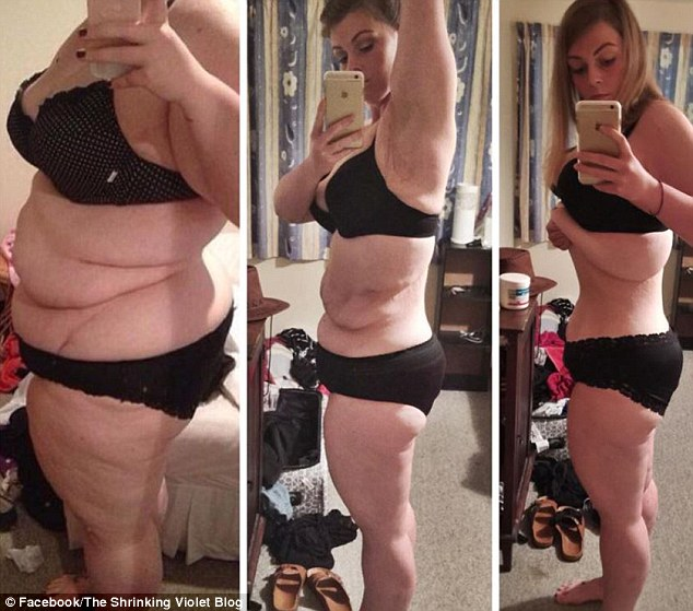obese woman whose dramatic 55kg weight loss left her with massive skin