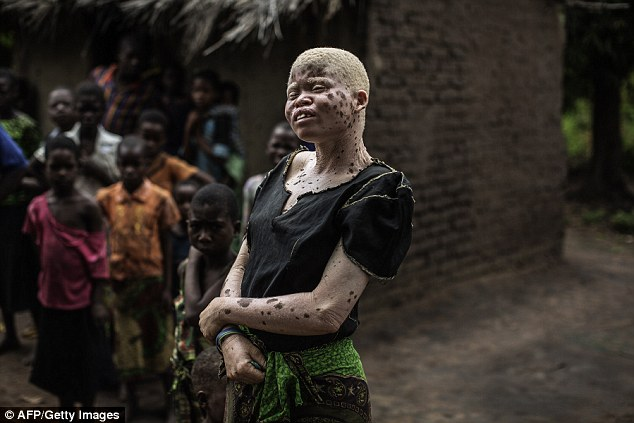 Mainasi Issa, 23, is one of a number of Malawian albino women under police protection in the impoverished African country