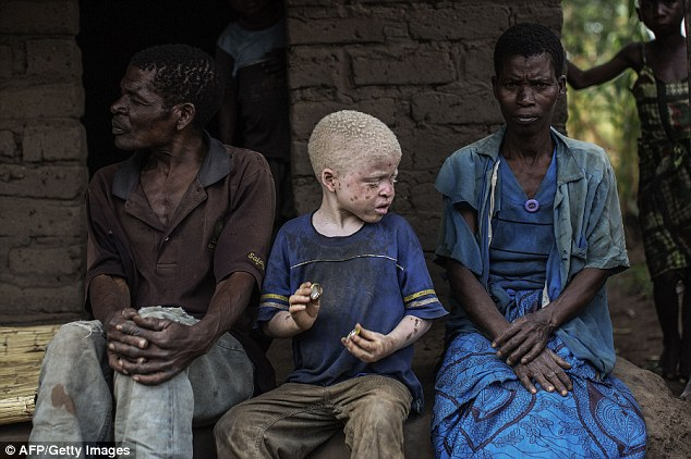 An albino boy sits between his two parents at their home in Malawi