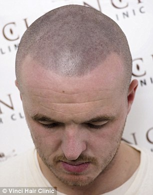 bald men turn to hair tattoos to creates the illusion of short hair daily mail online