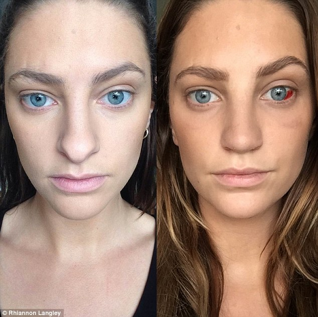 Pre- and post-op: Rhiannon Langley has shared a day-by-day diary of her Rhinoplasty surgery in Bangkok
