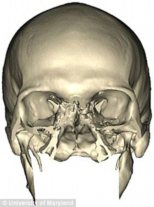 An MRI image of Richard Lee Norris re-constructed face transplant after being shot in the face