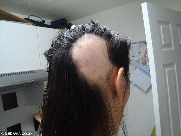 Bride To Be Diagnosed With Alopecia Months Before Her
