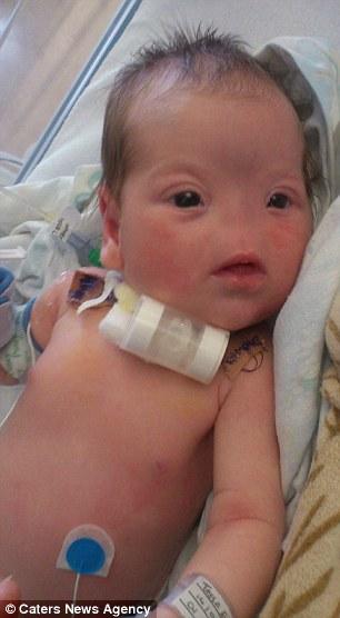 Portabebés : Traqueotomia y agenesia nasal - babywearing