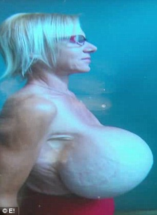 Life-threatening: In addition to Dee's pain, the state of her breast implants are on the verge of becoming a major medical emergency