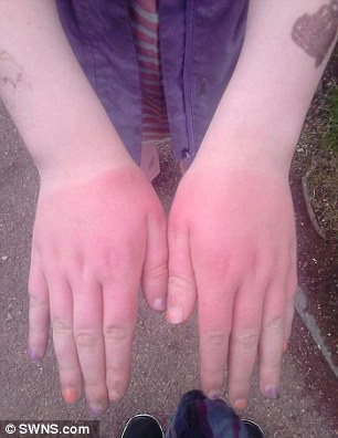 Girl 10 left with third degree burns after picking up ...