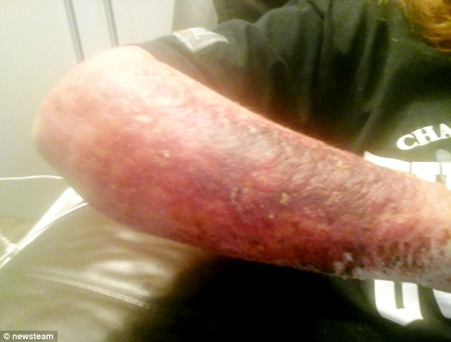 Worcestershire woman suffered burns after brushing against