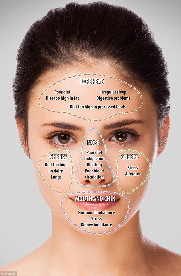 diagram for pimples on face strat wiring map your acne to reveal what the position of blemishes says about you | daily mail online
