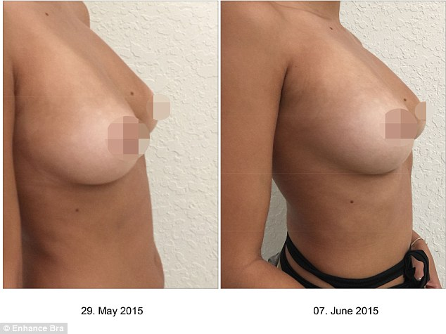What a feeling! Andrena added about her newly-enhanced breasts:'I would totally recommend this to friends. I wouldn't want to go under the knife but something so non-invasive like this is just incredible'