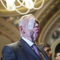 Harry Reid Sues Exercise Company After Losing Sight in Right Eye