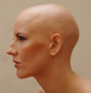Image result for woman without hair