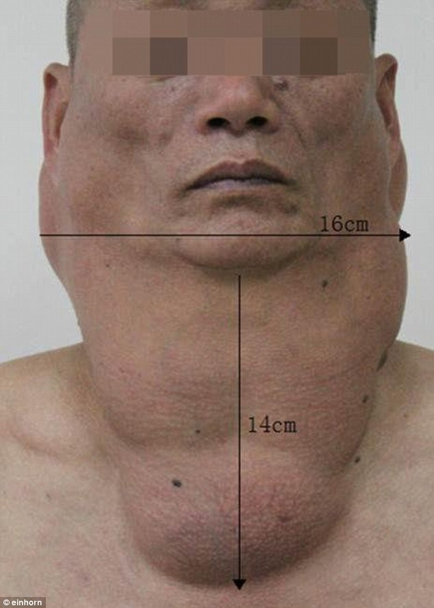 Diagnosis: Hong Shu (pictured) was diagnosed with Madelung disease where fat deposited around his throat