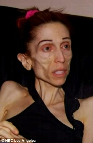 Anorexic Actress Rachael Farrokh Who Nearly Died Makes A