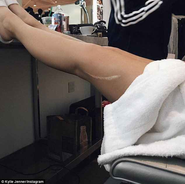 'I love my scar:' Kylie took to Instagram on Thursday to share her large, mid-thigh scar. The photo's purpose was solely that of the large mark