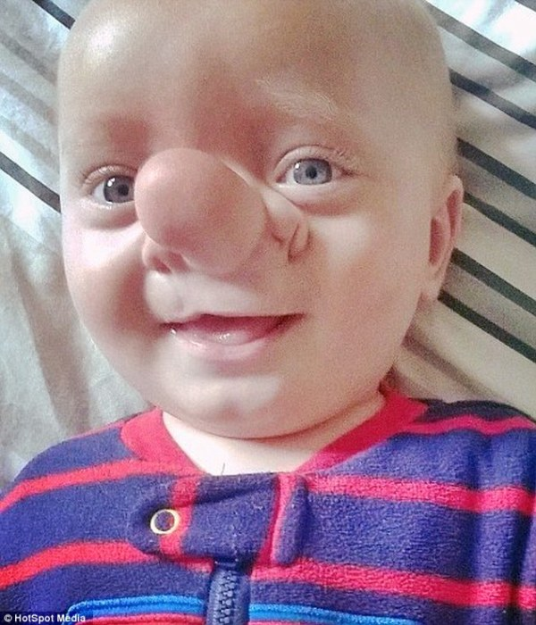 Ollie Trezise has a rare defect called encephalocele, where a sac-like protrusion or projection of the brain and the membranes that cover it, come through an opening in the skull
