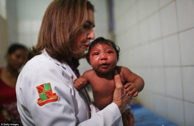 Helping hand: A pediatric infectologist at Oswaldo Cruz Hospital examines 2-month-old Ludmilla Hadassa Dias de Vasconcelos, who has microcephaly