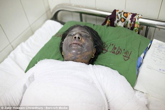 Jesmin Akter, 23, foi internado em Dhaka Medical College Hospital com queimaduras graves a muito do seu rosto e couro cabeludo também outras partes do seu corpo mais baixo