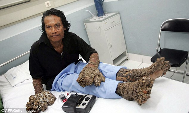 The disease was so severe his hands and feet (pictured) were covered in more than 13lbs of warts. Here he is pictured prior to surgery in February, 2009