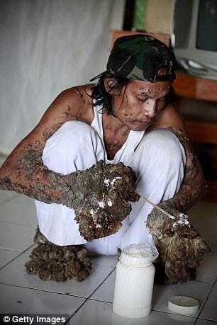 Indonesian man Dede Koswara treats his illness with cream in his home village Bandung, Java