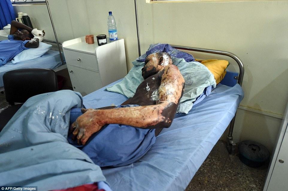 """Os médicos lidar com muitos dos chamados """"arma de feridos"""" no Hospital Estadual de Borno Especialista e como eles se recuperar em uma nova ala de 33 leitos"""