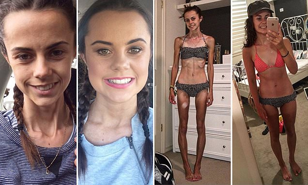 blogger documents her anorexia