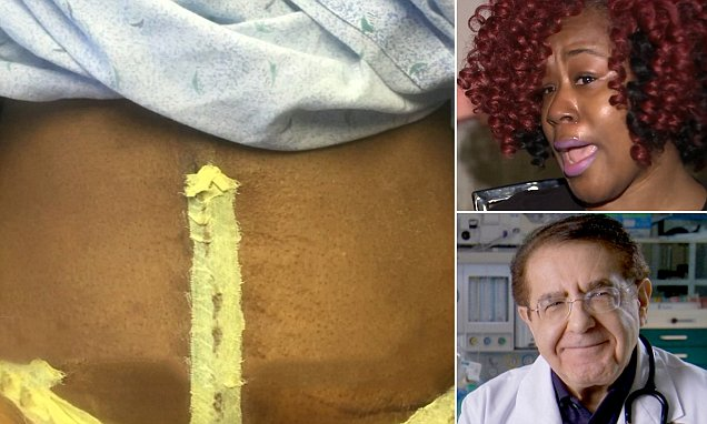 Houston woman wakes up WITHOUT a belly button after tummy ...