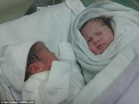 First identical twins with different skin colour born in ...