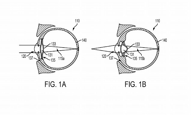 Google patents vision correcting gadget that is implanted