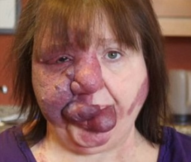 Transformed Joanne Tronconi  Shows How She Covers Her Birthmark With Make