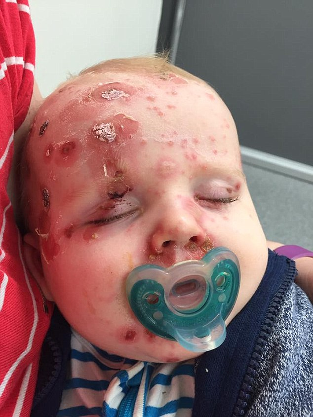 Elijah was admitted to hospital on Thursday, prompting his mother to urge other parents to vaccinate their kids