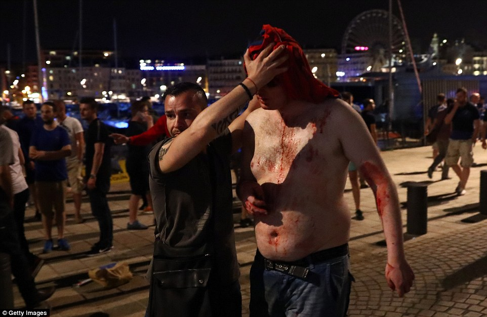 A man's bleeding head is mopped up with a towel after he suffered a wound as football fans clash on the streets of Marseille