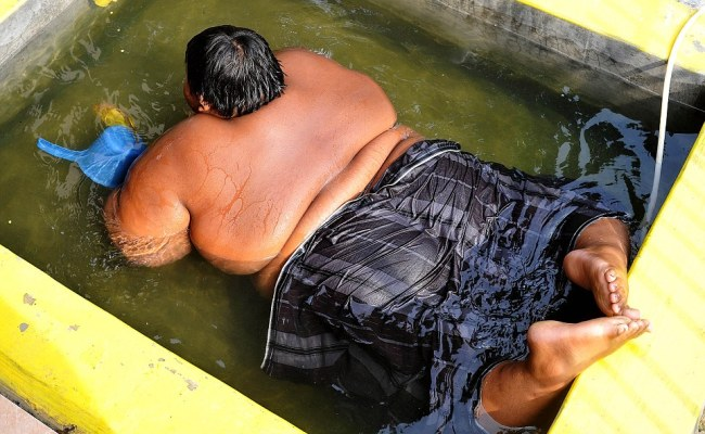 Morbidly Obese Indonesian Child Is Put On Crash Diet Over