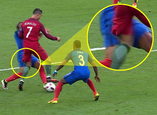 The impact of Payet's trailing leg catching Ronaldo's standing leg caused the injury to the Real man