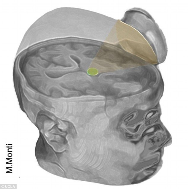 Groundbreaking: Scientists have successfully 'jump-start' a man's brain after a coma using incredibly low-energy ultrasound pulses. The device targeted the thalamus (highlighted here in green), which is the brain's 'sensory hub' controlling waking up, alertness and arousal