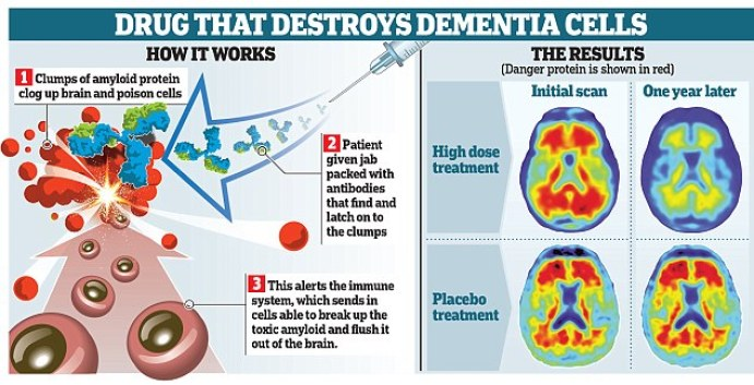 The revolutionary drug, aducanumab, could stop people from developing Alzheimer's disease