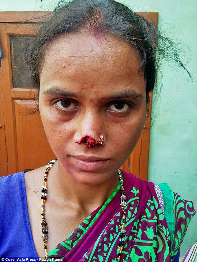 A distraught wife in India will be scarred for life after her husband of eight years allegedly cut off her nose because her family couldn¿t afford a marriage dowry