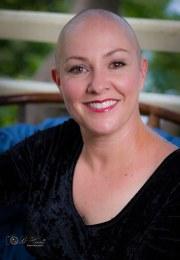 woman lost hair