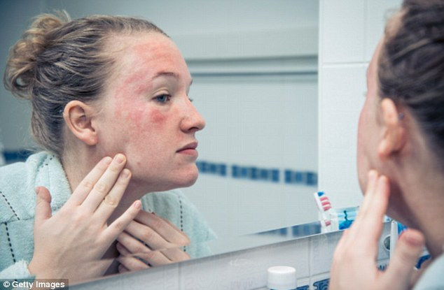 One in 12 British adults suffer from a kind of eczema - patches of sore, irritated, red, itchy skin