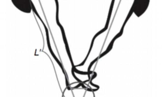 Stride gives us a longer 'virtual limb' that makes walking