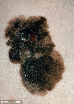 Melanoma, pictured, is thought to kill 2,500 people in Britain each year