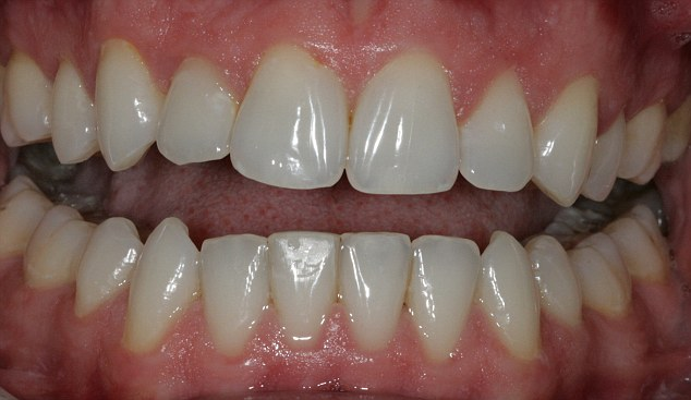How the cheaper faster alternative to costly clear braces ...