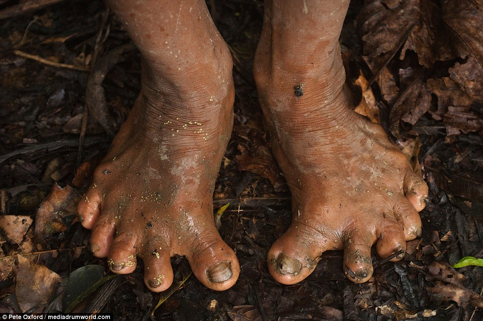 Call the chiropodist: The Huaorani spend a lot of time climbing up trees and it does enormous damage to their feet