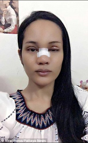 British tourist Marc Pearson was robbed of £4,000 in Thailand after a woman he invited back to his hotel room, Somboon Supasan, pictured, stole the cash and used it to get a nose job