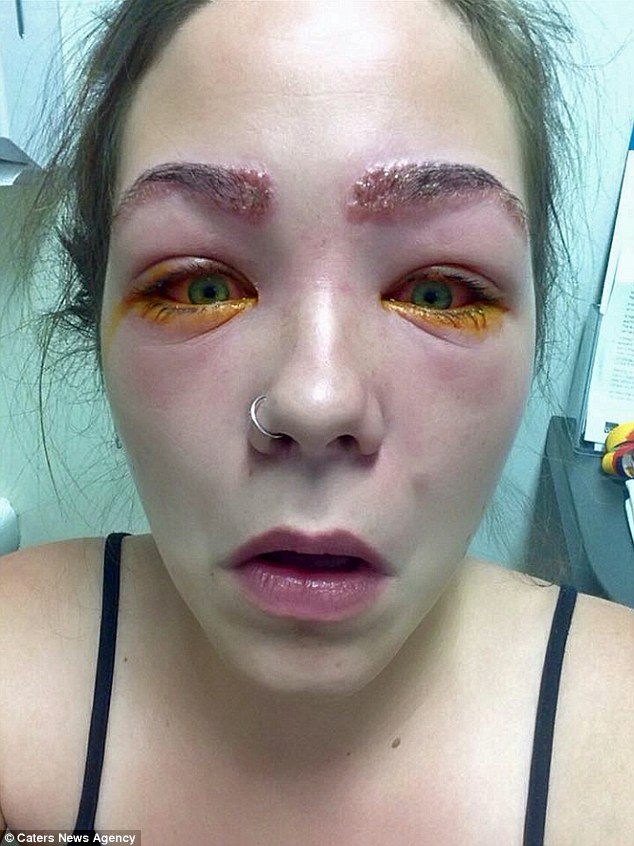 ... allergic reaction to hair dye leaves her with excruciating chemical