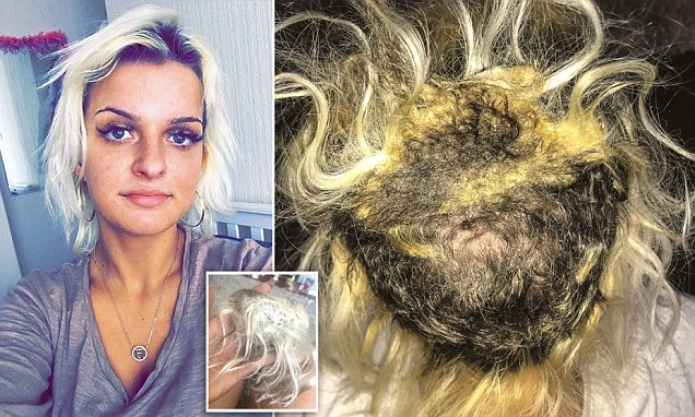 Durham Student Had Bald Patches From Hair Extensions
