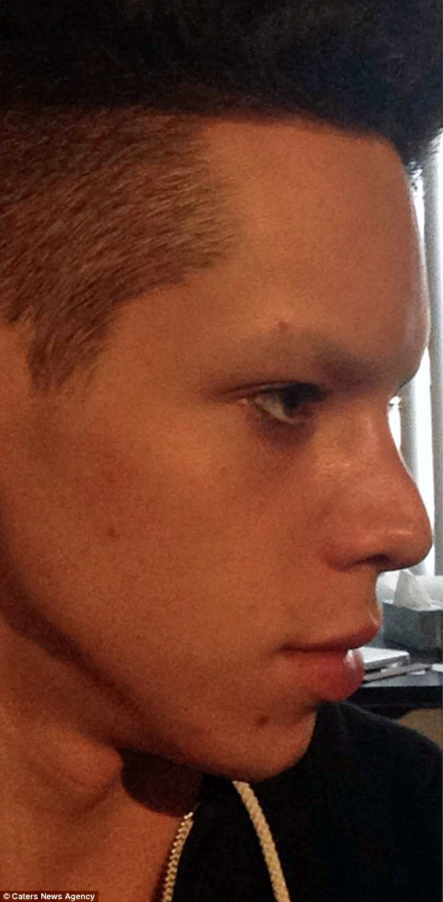 Vinny's nose before surgery. He has had two rhinoplasties in his quest to become an alien