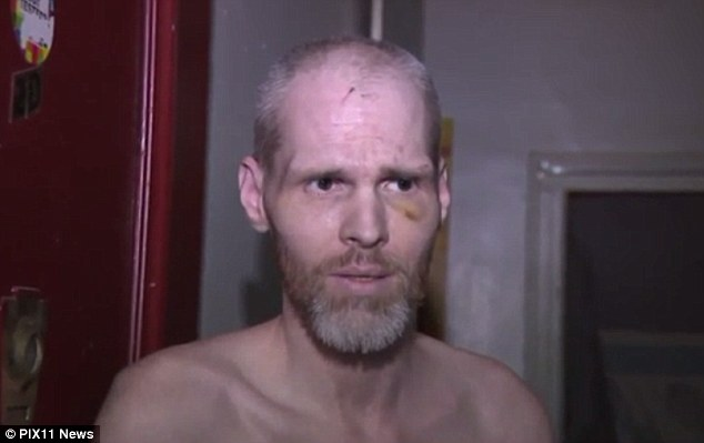 Molohon, who suffers from multiple sclerosis, was beaten by a group of four