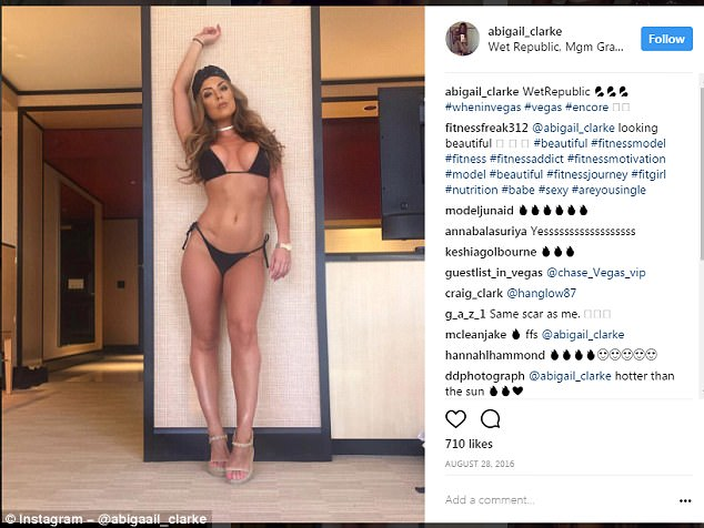 Abigail says she feels much more body confident now her IBS symptoms are under control