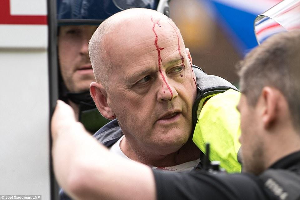Uno de los manifestantes EDL, que fue herido en los enfrentamientos, fue llevado a una camioneta de la policía
